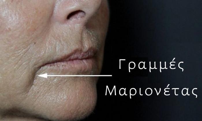 Εξάλειψη Ρυτίδων Μαριονέτας με Υαλουρονικό Οξύ