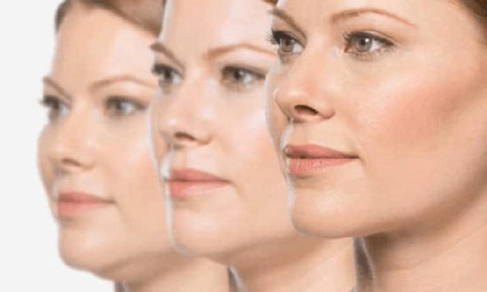 Ενέσιμη λιποδιάλυση σε μάγουλα
