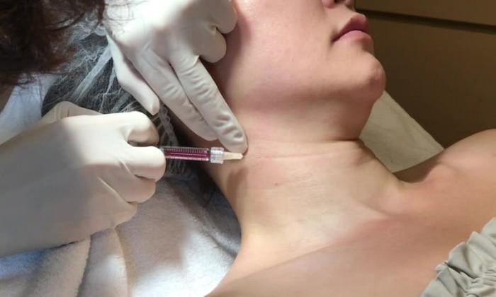 Εξάλειψη ρυτίδων λαιμού με fillers υαλουρονικού